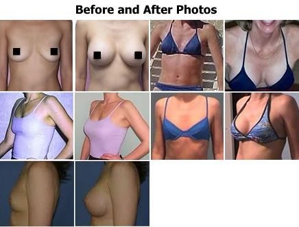 Breast Actives result photos