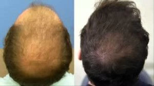 Hair Loss Protocol reviews