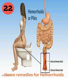 how to get rid of hemorrhoids naturally
